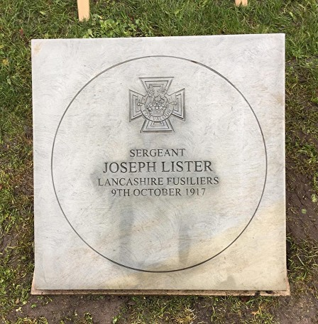 lister stone